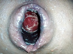 Anal insertion i6